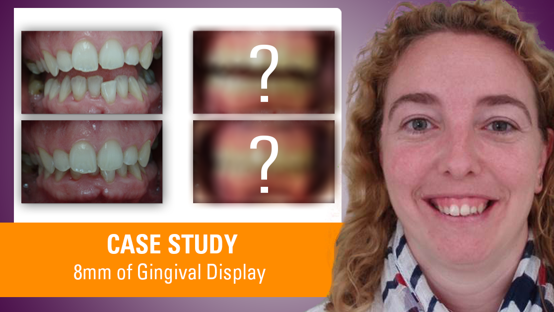 8mm Diana Gingival Display
