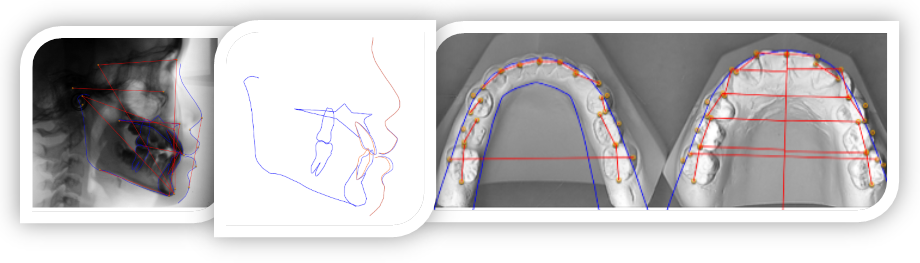Aligner+ Part II Diagnosis by Consultant