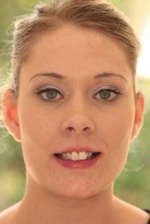 Asia orthodontic case before