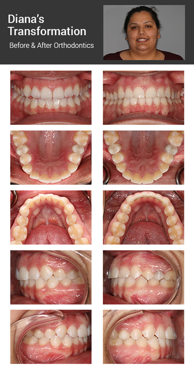 Dr. Cimino's case Diana before and after orthodontics pictures.png