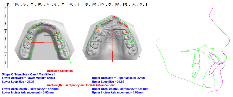 Johana-Model-Analysis-Distalization-vto.jpg