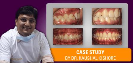 Kaushal Kishore Thankful Case Study Title Image