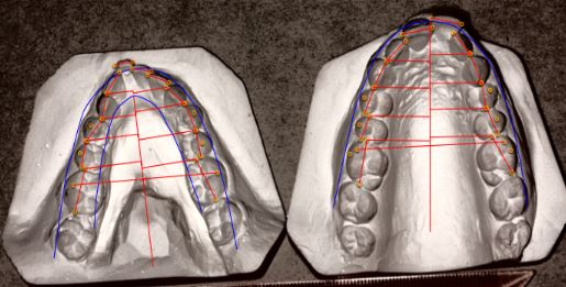 Model Measuring Planning in Asia Orthodontic Case