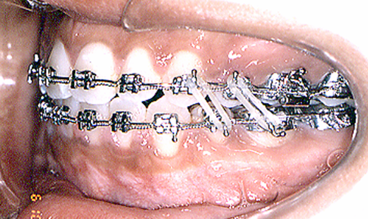 Orthodontic Finishing Started Before Upper Space was Closed