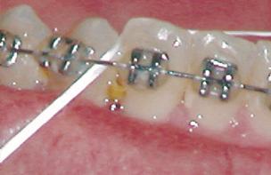 food caught between teeth braces