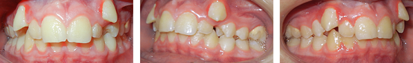 high upper canines patient