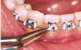 ligatures comes off braces
