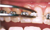 loose brackets wires or bands braces emergency