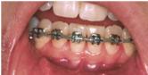 mouth sores braces