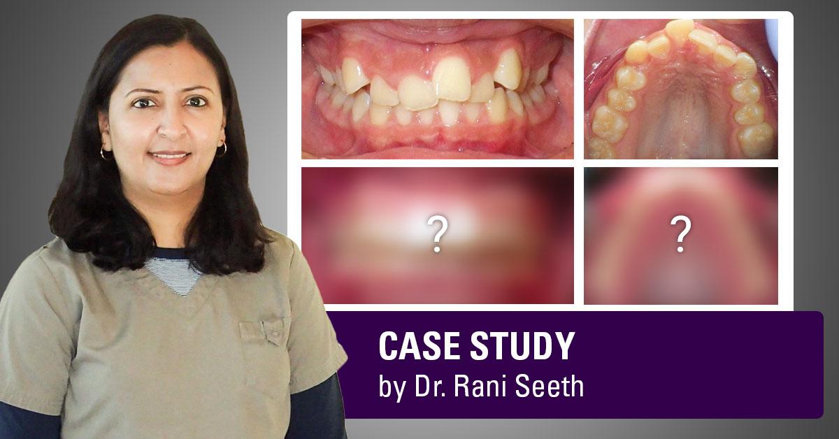 dr-rani-seeth-dds-case-study