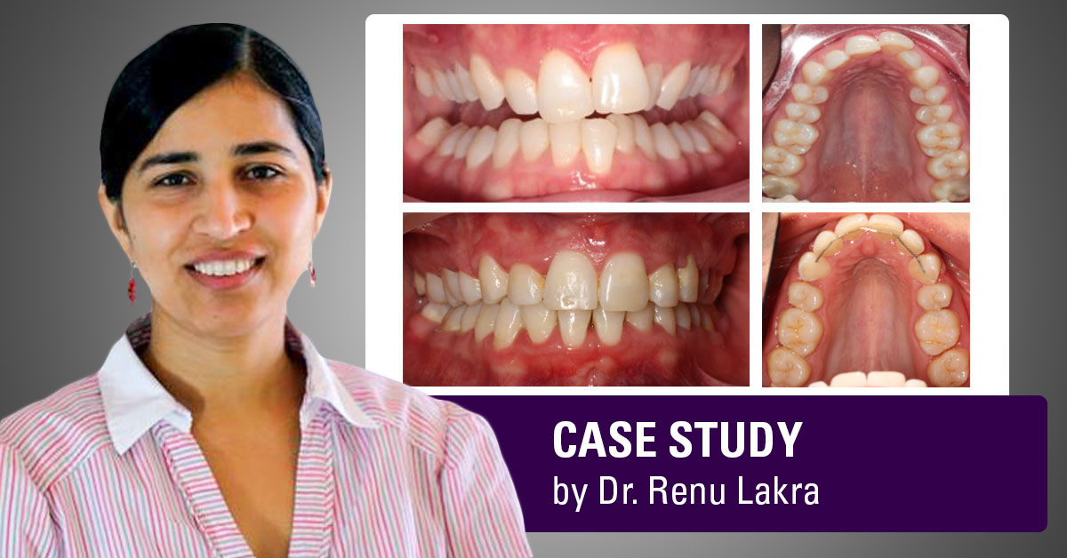 runa-lakra-asia-case-study-full-version